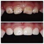 Что важно знать о зубах и уходе за ними для ребенка от 0 до 1