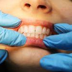 Где сделать чистку зубов недорого