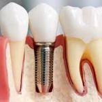 Зубные импланты от Implant Studio
