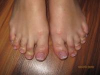 Наращивание ногтей гелем на ручках и ножках,    долговременное покрыти